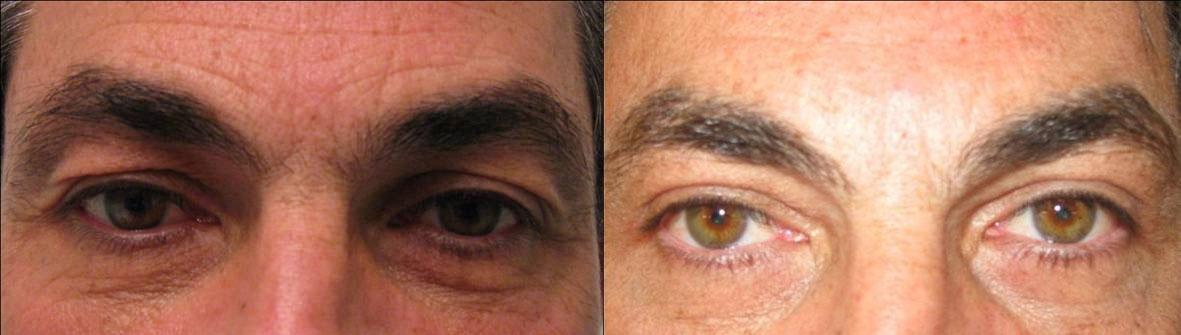 Blefaroplastica prima e dopo - Caso1