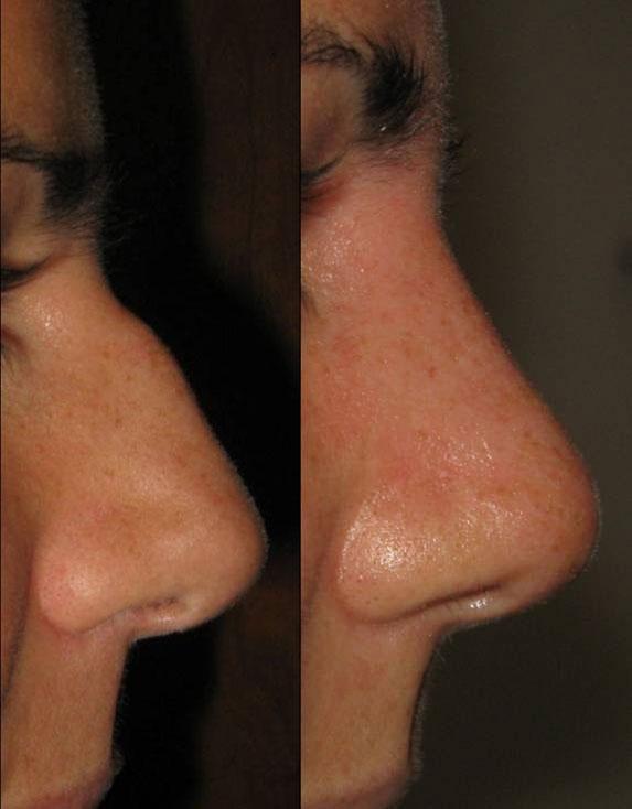 Rinoplastica prima e dopo - Caso1