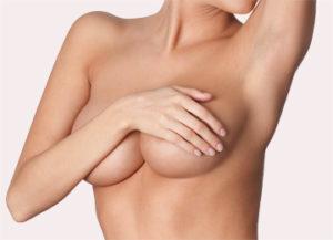 Lifting della mammella